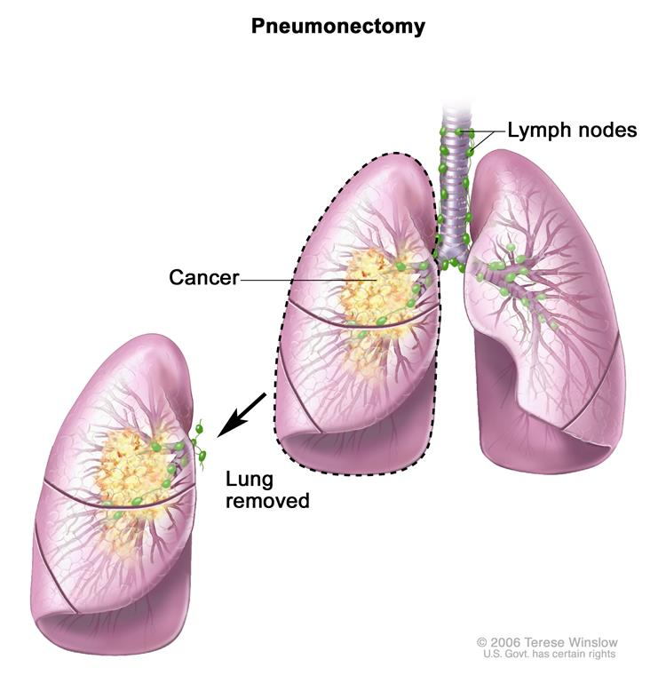 lung cancer non small cell lung cancer treatment pdqpatient version