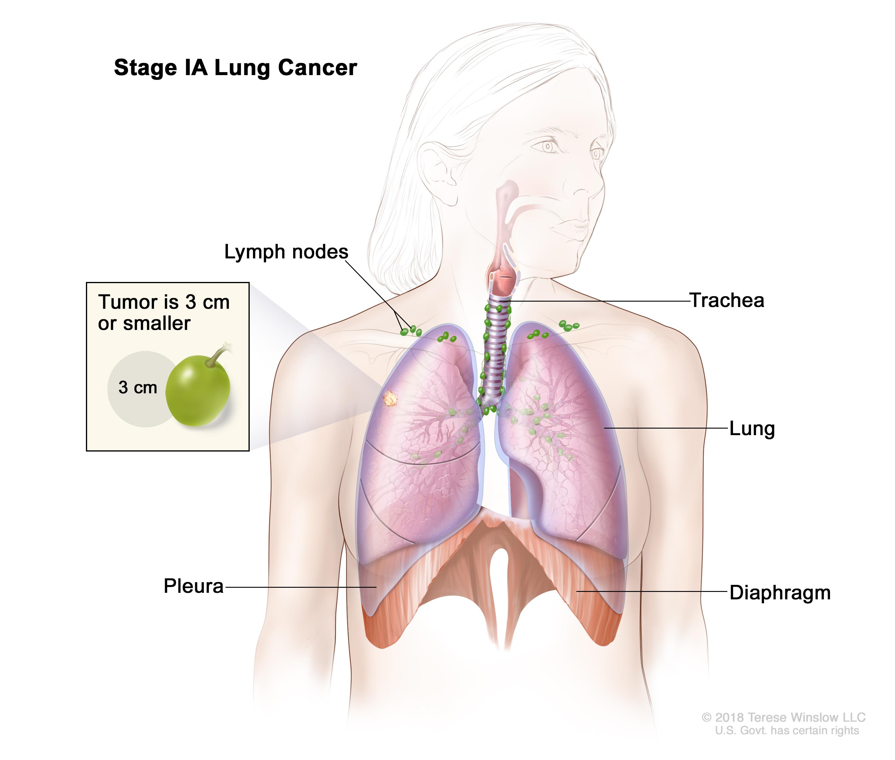 Non Small Cell Lung Cancer Treatment Pdqhealth Professional