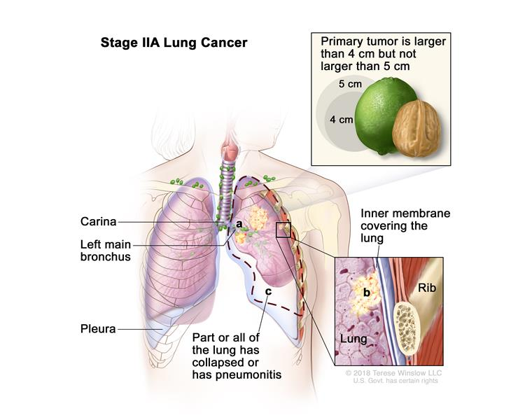 Stage IIA lung cancer; drawing shows a primary tumor (larger than 4 cm but not larger than 5 cm) in the left lung and cancer in (a) the left main bronchus and (b) the inner membrane covering the lung (inset). Also shown is (c) part or all of the lung has collapsed or has pneumonitis (inflammation). The carina, pleura, and a rib (inset) are also shown.