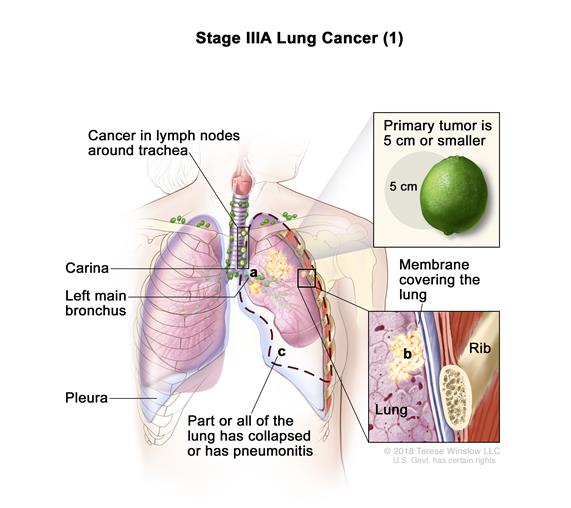 definition of stage iiia non-small cell lung cancer - nci, Cephalic Vein