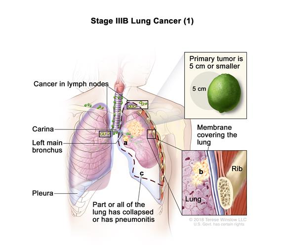Stage IIIB non-small cell lung cancer (1). Drawing shows cancer in lymph nodes above the collarbone on the opposite side of the chest as the primary tumor, and in the trachea, carina, left main bronchus, esophagus, sternum, diaphragm, and major blood vessels that lead to or from the heart; there may be separate tumors in the same lung. Top inset shows cancer that has spread from the lung, through the lung lining and chest wall lining, into the chest wall; a rib is also shown. Bottom inset shows cancer that has spread from the lung, through the membrane around the heart, into the heart.