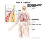Stage IV non-small cell lung cancer. Drawing shows other parts of the body where lung cancer may  spread, including the other lung, the brain, lymph nodes, adrenal gland, kidney, liver, and bone. Inset shows cancer spreading through the blood and lymph nodes to other parts of the body.