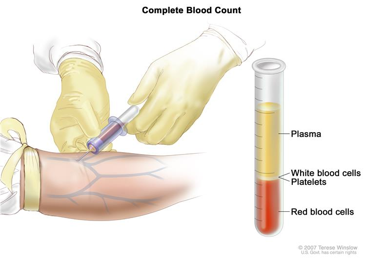 Complete blood count (CBC); left panel shows blood being drawn from a vein on the inside of the elbow using a tube attached to a syringe; right panel shows a laboratory test tube with blood cells separated into layers: plasma, white blood cells, platelets, and red blood cells.