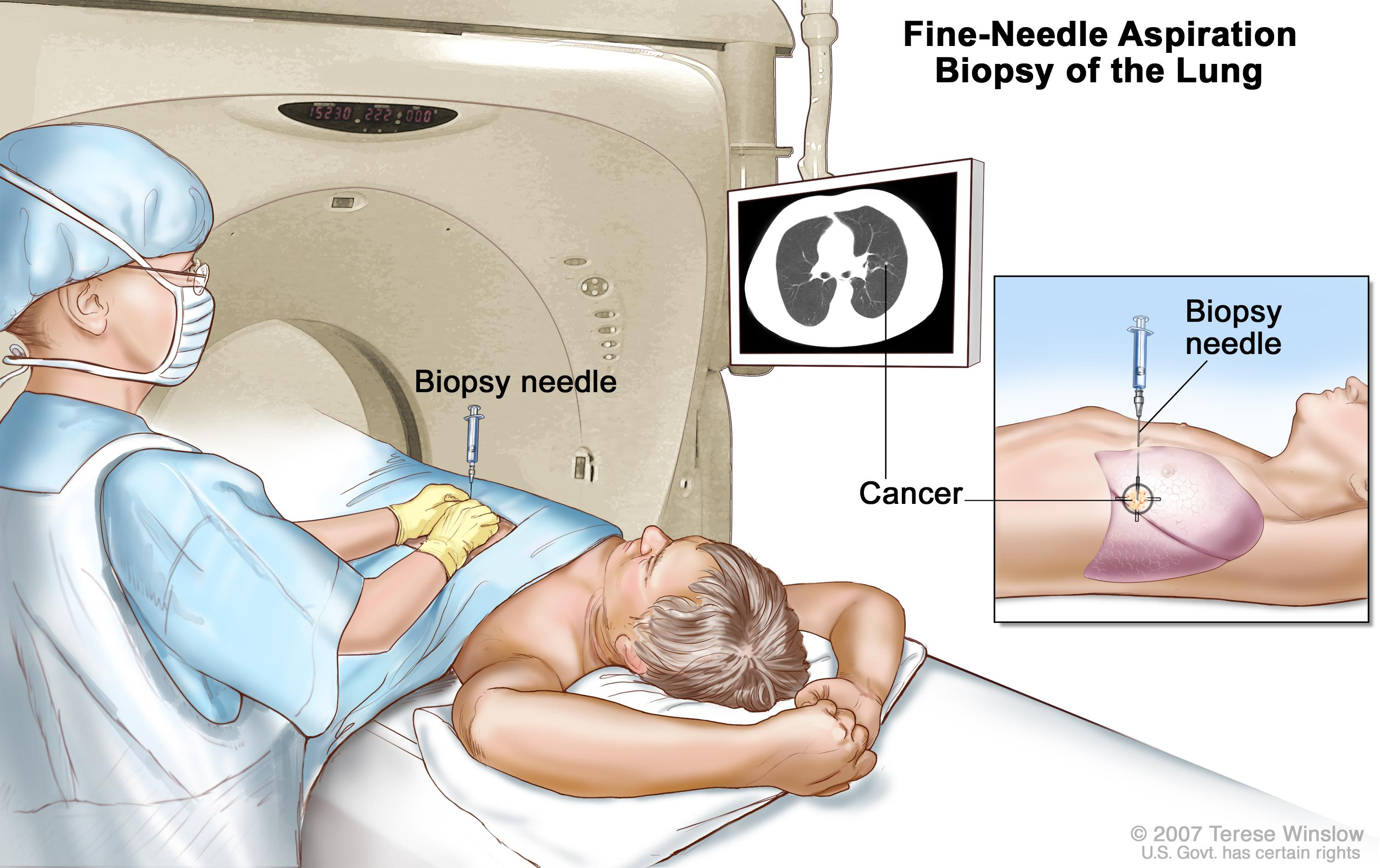 Fine-needle aspiration biopsy of the lung; drawing shows a patient lying on a table that slides through the computed tomography (CT) machine with an x-ray picture of a cross-section of the lung on a monitor above the patient. Drawing also shows a doctor using the x-ray picture to help place the biopsy needle through the chest wall and into the area of abnormal lung tissue. Inset shows a side view of the chest cavity and lungs with the biopsy needle inserted into the area of abnormal tissue.