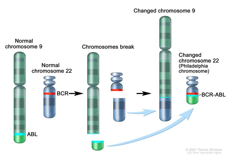 Philadelphia chromosome; three-panel drawing shows a piece of chromosome 9 and a piece of chromosome 22 breaking off and trading places, creating a changed chromosome 22 called the Philadelphia chromosome. In the left panel, the drawing shows a normal chromosome 9 with the ABL gene and a normal chromosome 22 with the BCR gene. In the center panel, the drawing shows chromosome 9 breaking apart in the ABL gene and chromosome 22 breaking apart below the BCR gene. In the right panel, the drawing shows chromosome 9 with the piece from chromosome 22 attached and chromosome 22 with the piece from chromosome 9 containing part of the ABL gene attached. The changed chromosome 22 with the BCR-ABLgene is called the Philadelphia chromosome.