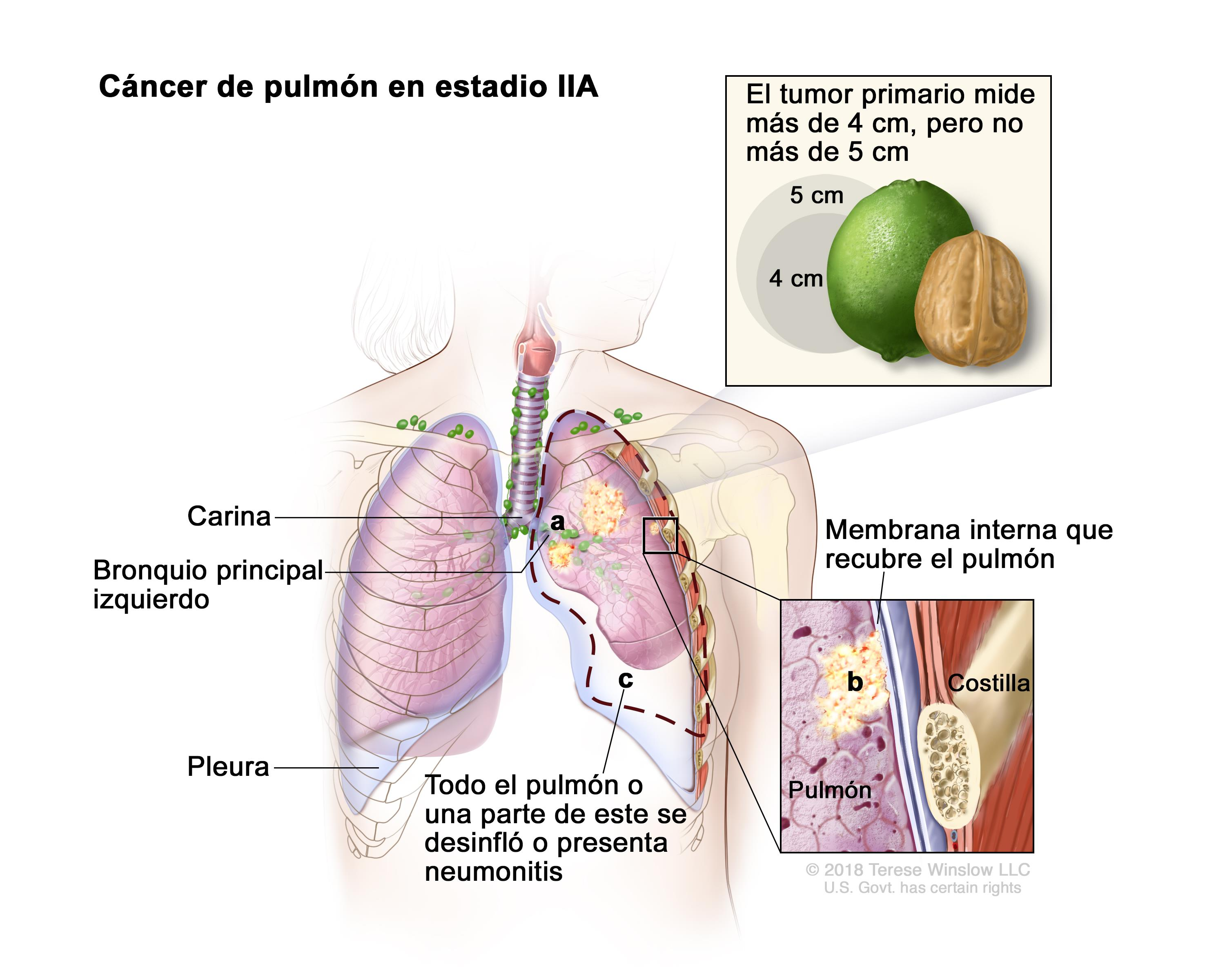 sintomas del cancer de pulmon pdf