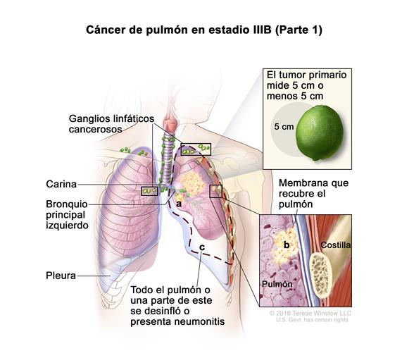 cancer de pulmon con metastasis: