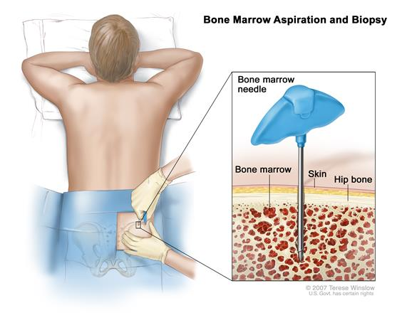 Bone marrow aspiration and biopsy; drawing shows a patient lying face down on a table and a Jamshidi needle (a long, hollow needle) being inserted into the hip bone. Inset shows the Jamshidi needle being inserted through the skin into the bone marrow of the hip bone.
