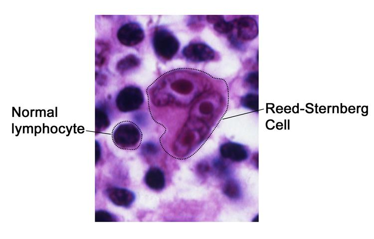 Reed-Sternberg cell; photograph shows normal lymphocytes compared with a Reed-Sternberg cell.