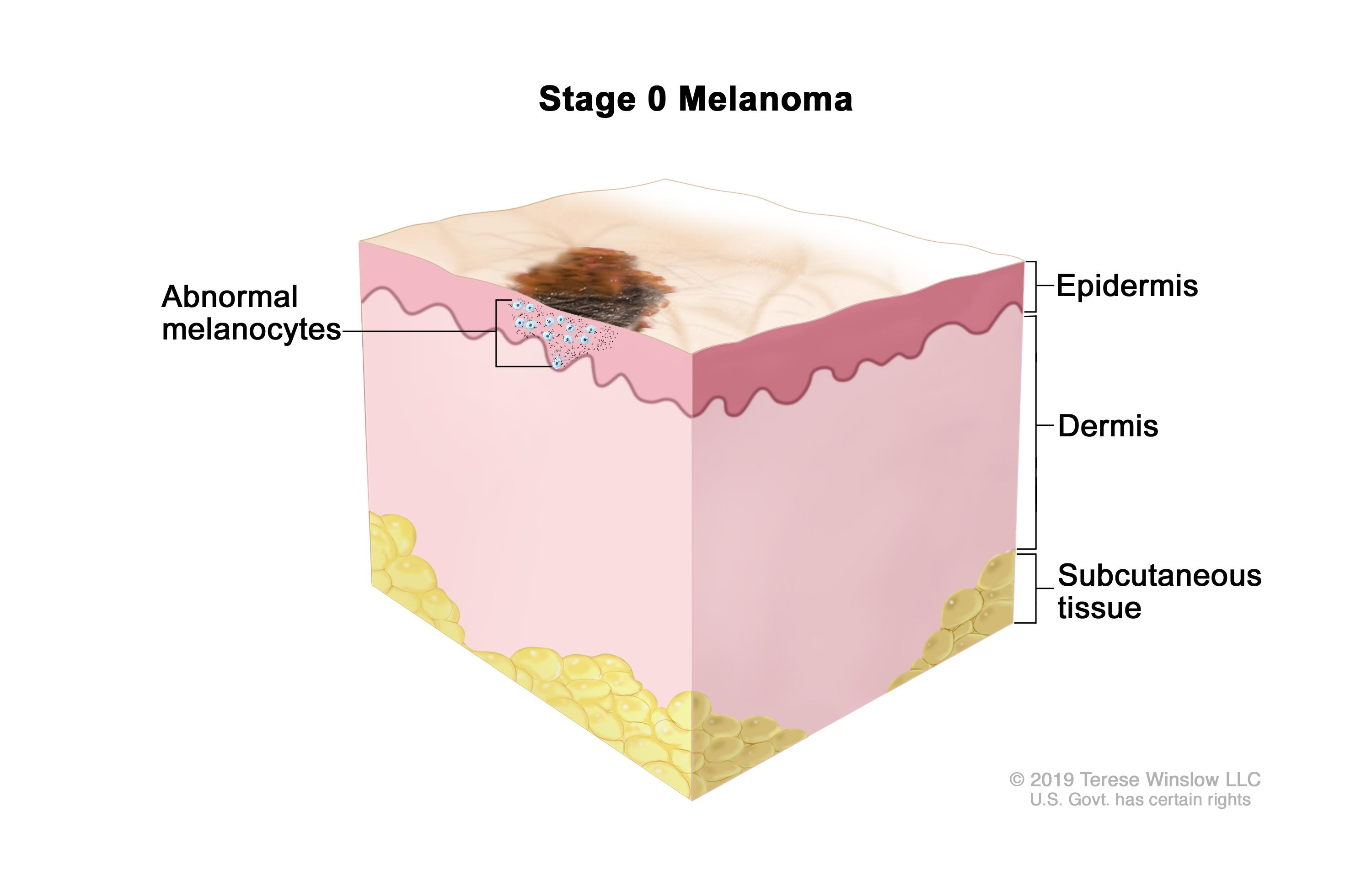 the clinical description of the skin disease melanoma Melanoma is a disease in which for pictures and descriptions of common moles and melanoma //wwwcancergov/types/skin/patient/melanoma-treatment-pdq.