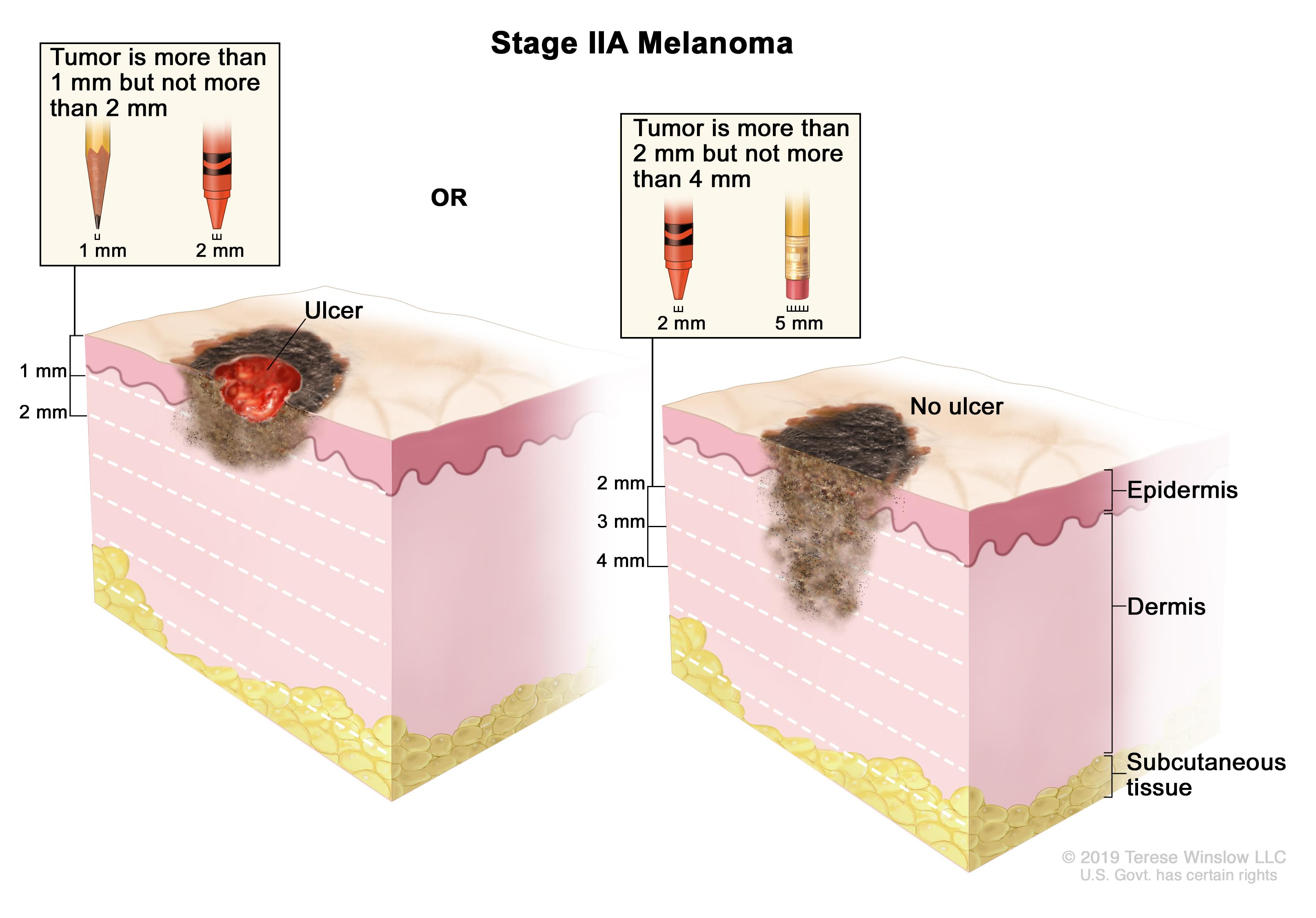 Two-panel drawing of stage IIA melanoma; the panel on the left shows a tumor that is more than 1 but not more than 2 millimeters thick, with ulceration (a break in the skin). The panel on the right shows a tumor that is more than 2 but not more than 4 millimeters thick, without ulceration. Also shown are the epidermis (outer layer of the skin), the dermis (inner layer of the skin), and the subcutaneous tissue below the dermis.