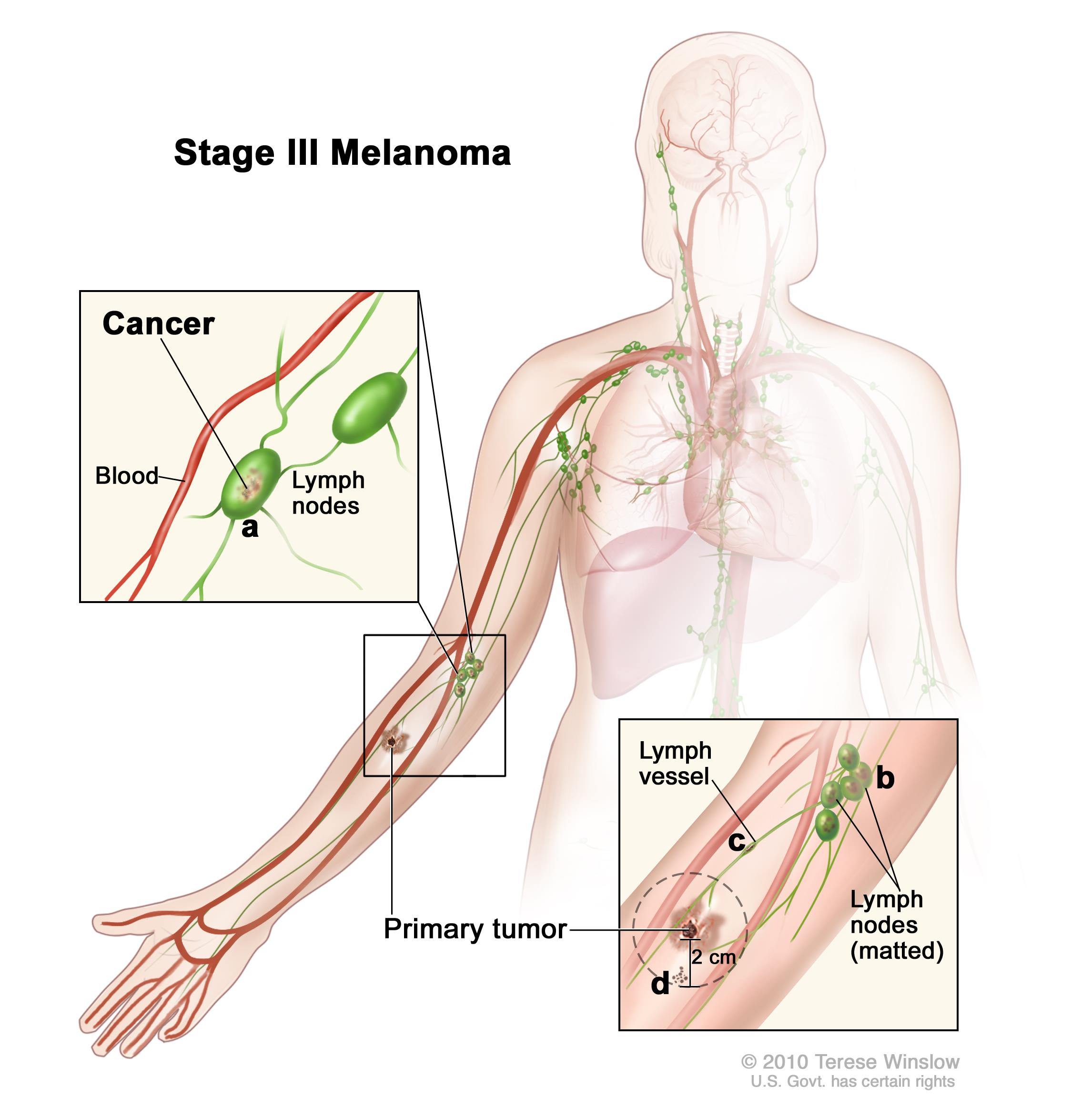 Stage III melanoma; drawing shows a primary tumor on the lower arm. In the top inset, cancer is shown (a) in lymph nodes near a blood vessel. In the bottom inset, cancer is shown (b) in lymph nodes that are joined together (matted), (c) in a lymph vessel, and (d) not more than 2 centimeters away from the primary tumor.