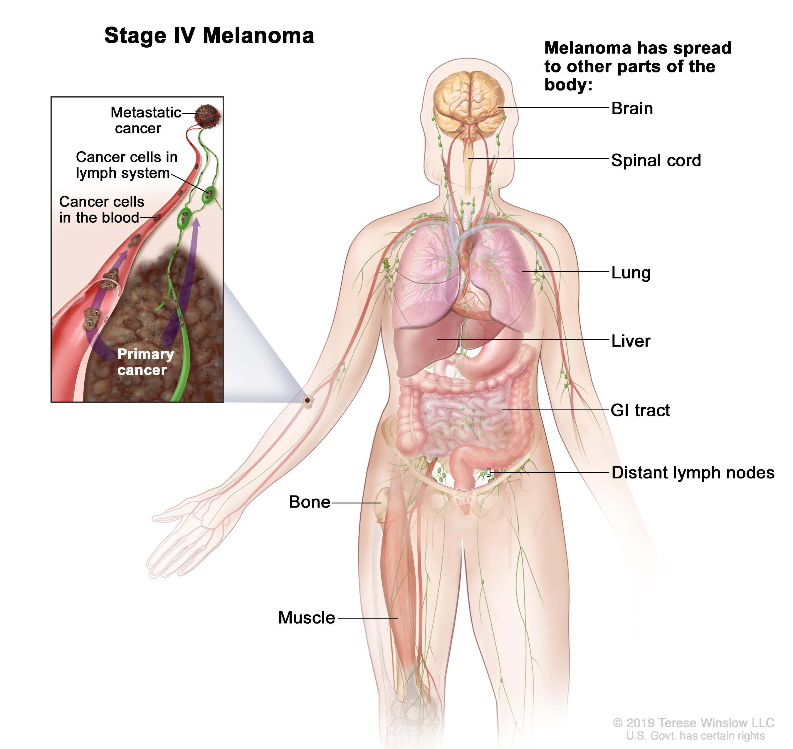 Stage IV melanoma; drawing shows other parts of the body where melanoma may spread, including the brain, lung, liver, lymph nodes, small intestine, and bone. An inset shows cancer cells spreading through the blood and lymph system to another part of the body where metastatic cancer has formed.