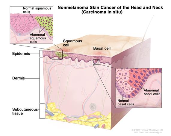 Stage 0 nonmelanoma skin carcinoma in situ; drawing shows skin anatomy with abnormal cells in the epidermis (outer layer of the skin). Also shown are the dermis (inner layer of the skin) and subcutaneous tissue below the dermis.