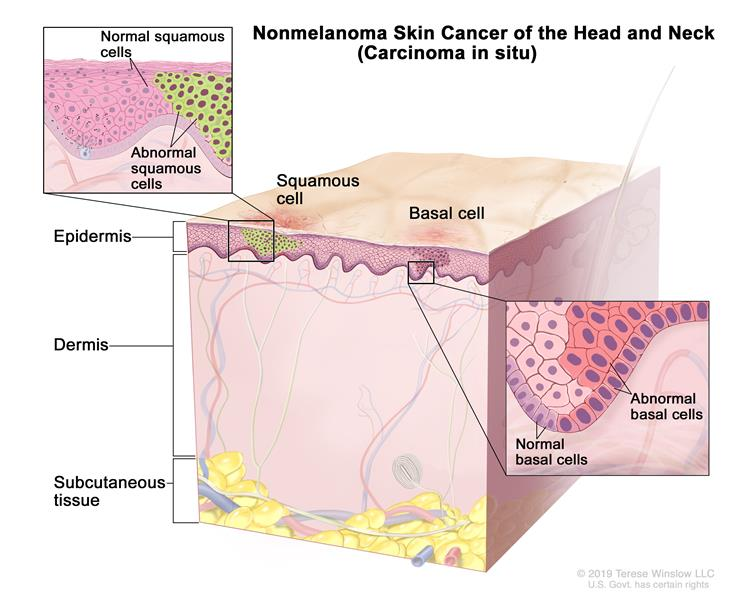 Nonmelanoma skin cancer of the head and neck (carcinoma in situ); drawing shows abnormal squamous cells and basal cells in the epidermis. Also shown are the dermis and the subcutaneous tissue below the dermis. There are two insets: the inset on the top left shows a close up of normal and abnormal squamous cells; the inset on the bottom right shows a close up of normal and abnormal basal cells.