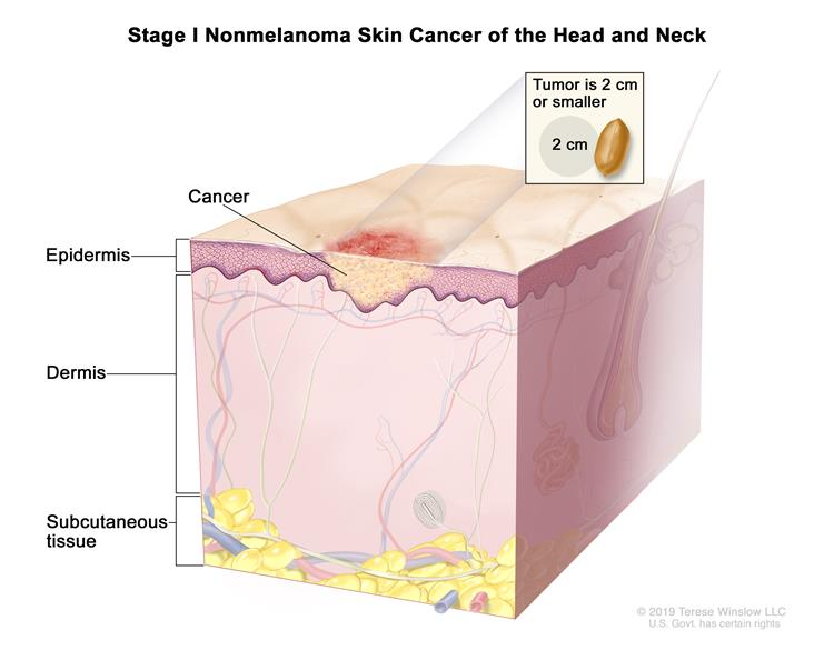 Stage I nonmelanoma skin cancer; drawing shows a tumor in the epidermis (outer layer of the skin) that is no more than 2 centimeters wide. Also shown are the dermis (inner layer of the skin) and the subcutaneous tissue below the dermis.