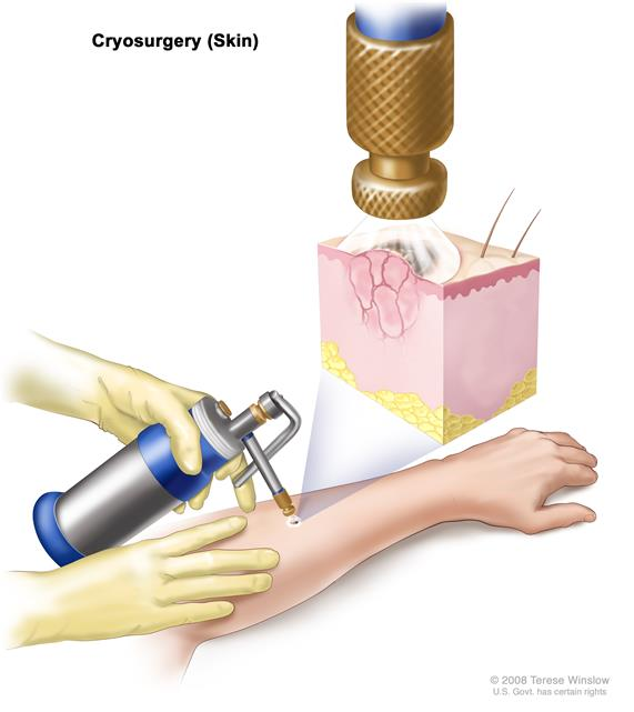 Cryosurgery; drawing shows an instrument with a nozzle held over an abnormal area on the lower arm of a patient. Inset shows a spray of liquid nitrogen or liquid carbon dioxide coming from the nozzle and covering the abnormal lesion. Freezing destroys the lesion.