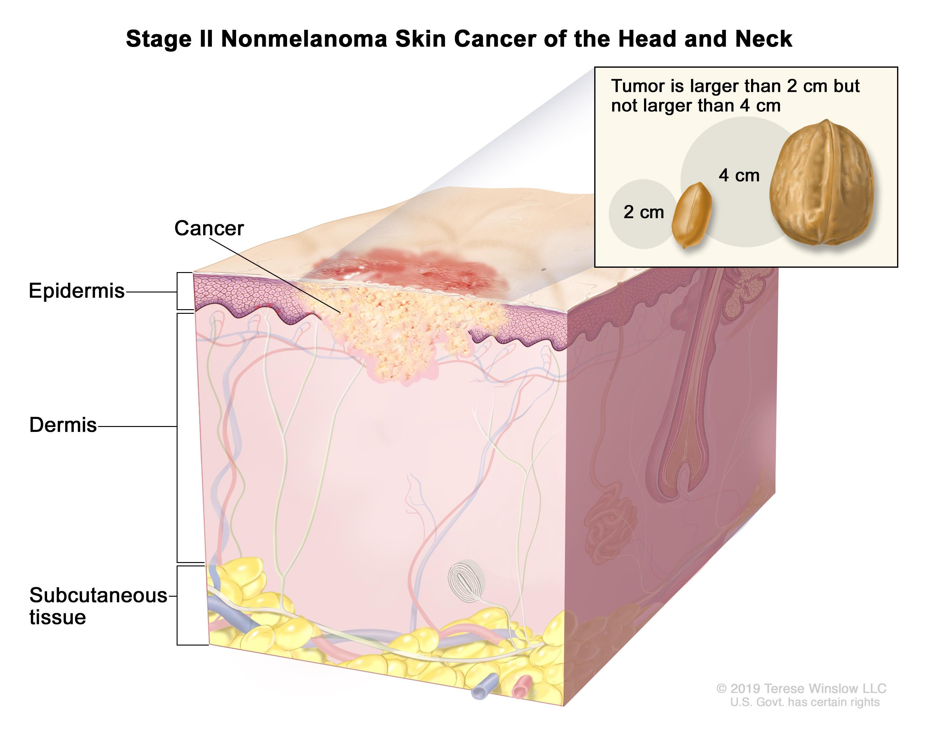 Stage II nonmelanoma skin cancer of the head and neck; drawing shows cancer in the epidermis and the dermis. An inset shows that the tumor is larger than 2 centimeters but not larger than 4 centimeters and that 2 centimeters is about the size of a peanut and 4 centimeters is about the size of a walnut. Also shown is the subcutaneous tissue below the dermis.