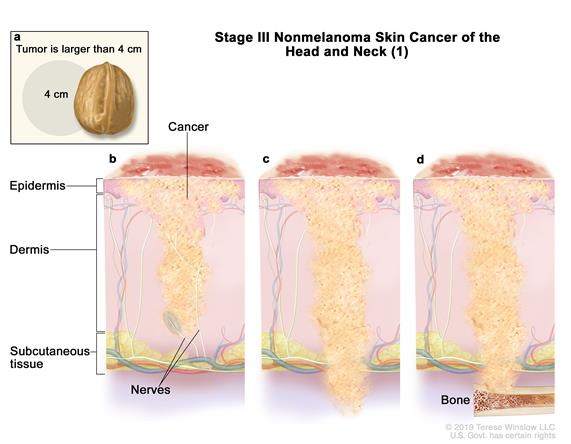 Stage III nonmelanoma skin cancer (1); drawing shows a primary tumor in one arm and parts of the body where it may spread, including the bones of the jaw, eye socket, or side of the skull.