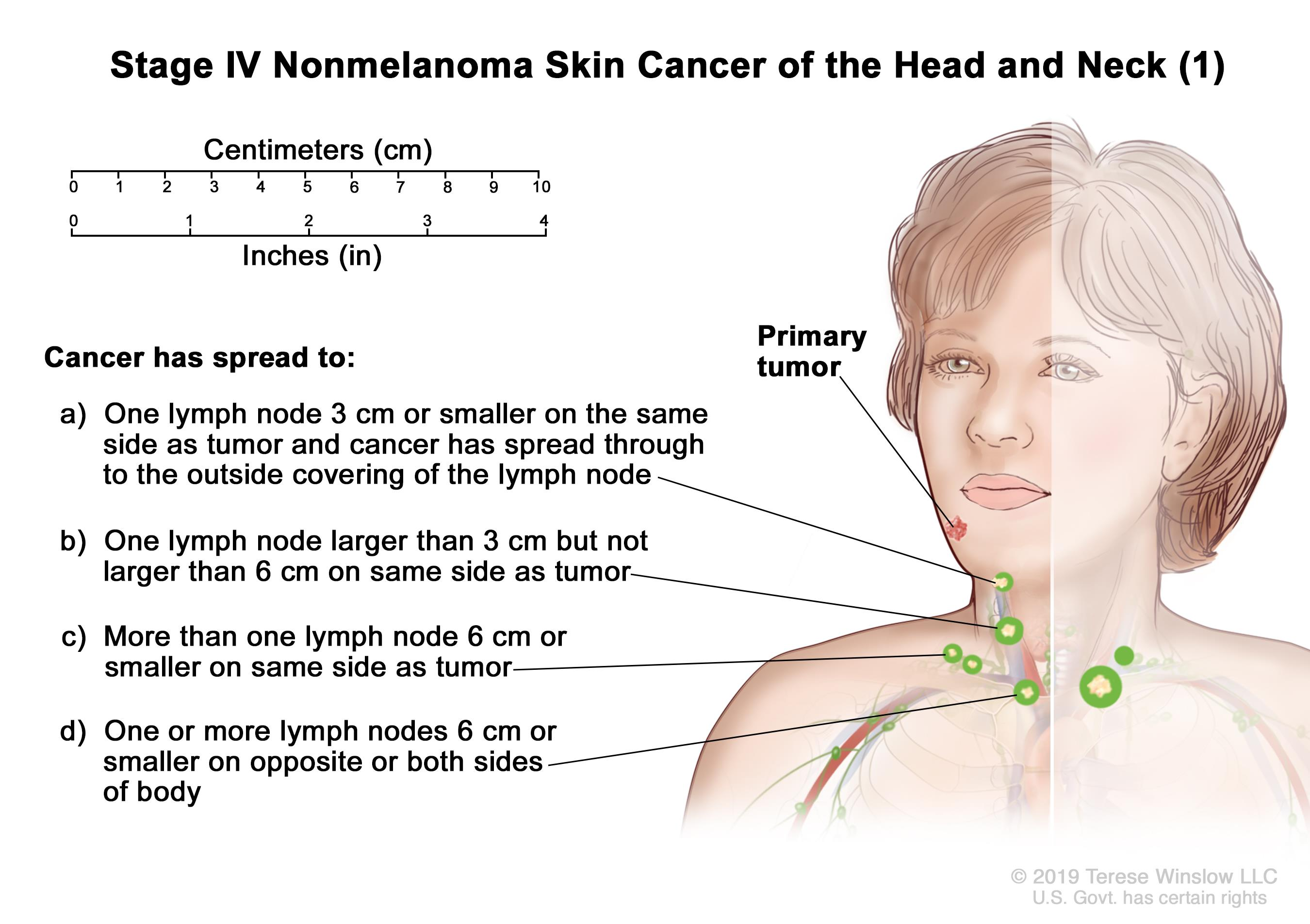 Stage IV nonmelanoma skin cancer of the head and neck (1); drawing shows a primary tumor on the face and cancer that has spread to: (a) one lymph node on the same side of the body as the tumor, the node is 3 centimeters or smaller, and cancer has spread through to the outside covering of the lymph node; (b) one lymph node on the same side of the body as the tumor and the node is larger than 3 centimeters but not larger than 6 centimeters; (c) more than one lymph node on the same side of the body as the tumor and the nodes are 6 centimeters or smaller; and (d) one or more lymph nodes on the opposite or both sides of the body as the tumor and the nodes are 6 centimeters or smaller. Also shown is a 10-centimeter ruler and a 4-inch ruler.