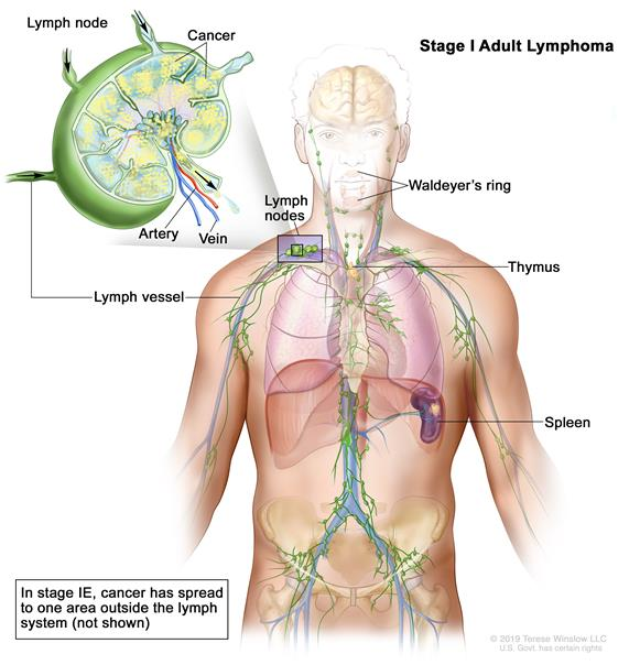 Stage I adult non-Hodgkin lymphoma; drawing shows cancer in one lymph node group above the diaphragm. An inset shows a lymph node with a lymph vessel, an artery, and a vein. Lymphoma cells containing cancer are shown in the lymph node.