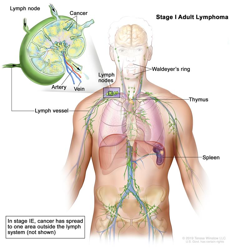 adult non-hodgkin lymphoma treatment (pdq®)—patient version, Skeleton