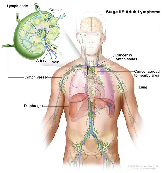 Stage IIE adult non-Hodgkin lymphoma; drawing shows cancer in one lymph node group above the diaphragm and in the left lung. An inset shows a lymph node with a lymph vessel, an artery, and a vein. Lymphoma cells containing cancer are shown in the lymph node.