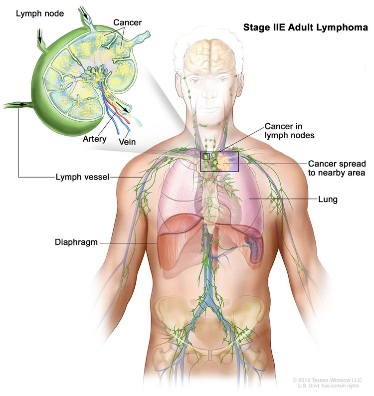 Stage IIE adult lymphoma; drawing shows cancer that has spread from a group of lymph nodes to a nearby area. Also shown is a lung and the diaphragm.   An inset shows a lymph node with a lymph vessel, an artery, and a vein. Cancer cells are shown in the lymph node.