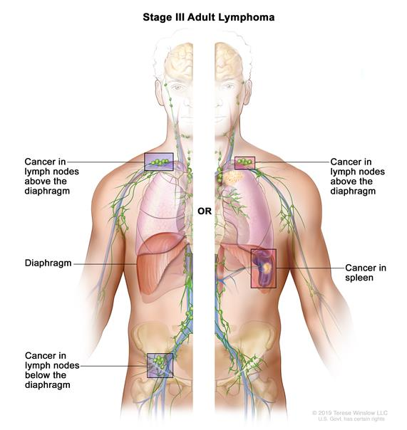 non-Hodgkin Lymphoma Cancer