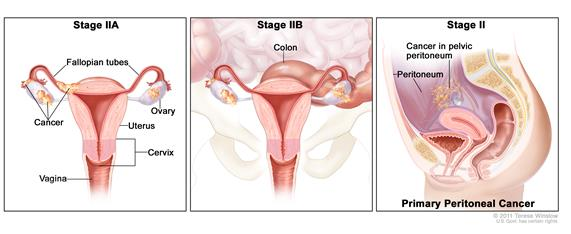 Three-panel drawing of stage IIA, IIB, and stage II primary peritoneal cancer; the first panel (stage IIA) shows cancer inside both ovaries that has spread to the uterus and fallopian tube. The second panel (stage IIB) shows cancer inside both ovaries  that has spread the colon. The third panel (stage II primary peritoneal cancer) shows cancer in the peritoneum. Also shown are the cervix and vagina.