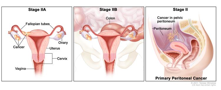 Three-panel drawing of stage IIA, IIB, and IIC ovarian cancer; first panel shows two stage IIA tumors, one inside each ovary, that have spread to the uterus and fallopian tube. The second panel shows two stage IIB tumors, one inside each ovary, that have spread to the uterus, fallopian tube, and colon. The third panel shows two stage IIC tumors, one inside each ovary, that have spread to the uterus and colon. An inset shows cancer cells floating in the peritoneal fluid surrounding abdominal organs. Also shown are the cervix and vagina.