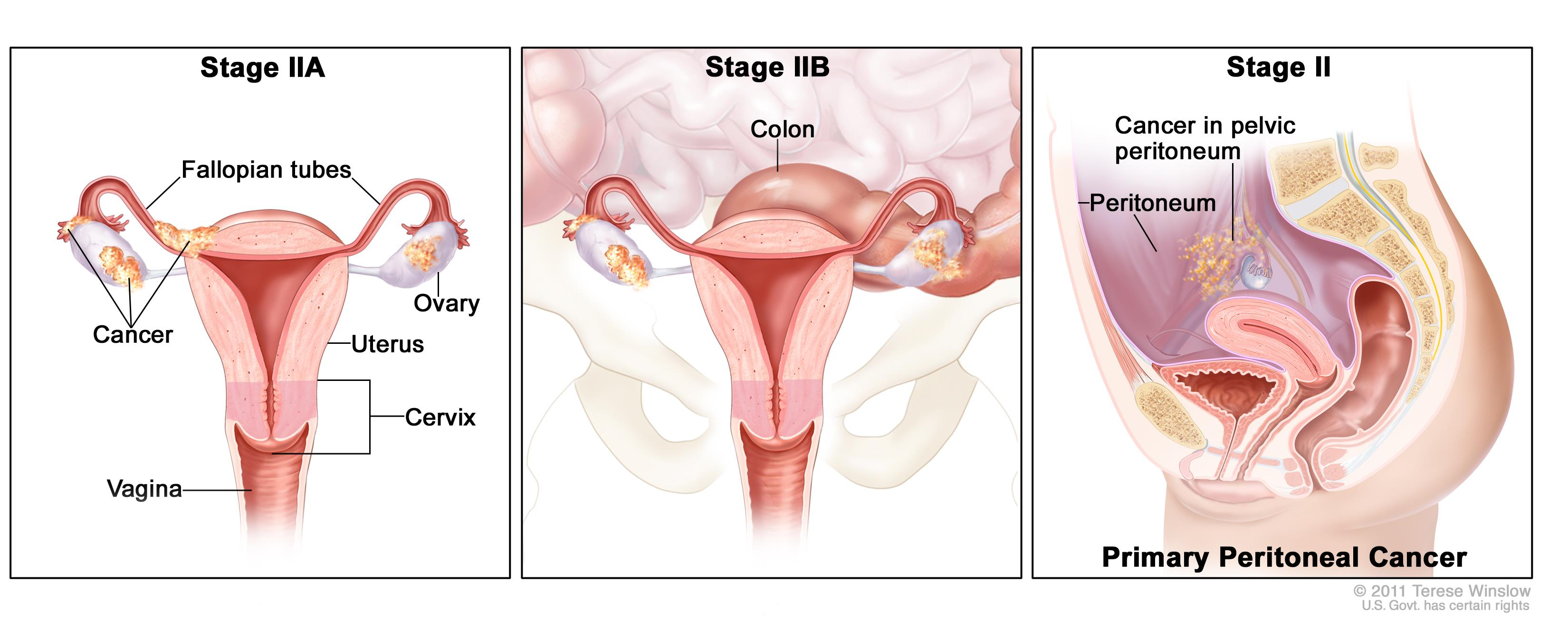 About Fallopian Tube Cancer Gynecological Cancer Care Team