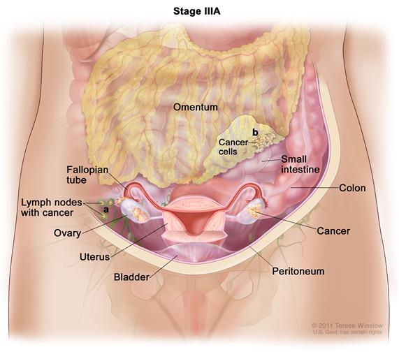 Stage IIIA ovarian cancer; drawing shows tumors inside both ovaries that have spread to the uterus, colon, and the surface of the peritoneum. Also shown are the fallopian tubes, small intestine, and bladder.