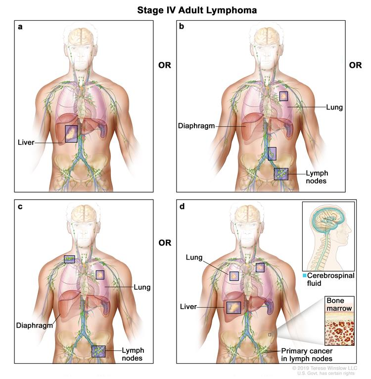 Adult Non Hodgkin Lymphoma Treatment Pdqpatient Version