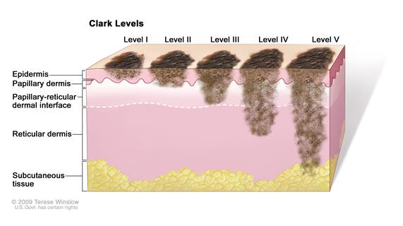 Clark levels of skin cancer; drawing shows skin with five thin lesions of different depths. In the first lesion (Clark Level I), the cancer is in the epidermis only. In the second lesion (Clark Level II), the cancer has begun to spread into the papillary dermis (upper layer of the dermis). In the third lesion (Clark Level III), the cancer has spread through the papillary dermis into the papillary-reticular dermal interface but not into the reticular dermis (lower layer of the dermis). In the fourth lesion (Clark Level IV), the cancer has spread into the reticular dermis. In the fifth lesion (Clark Level V), the cancer has spread into the subcutaneous tissue.