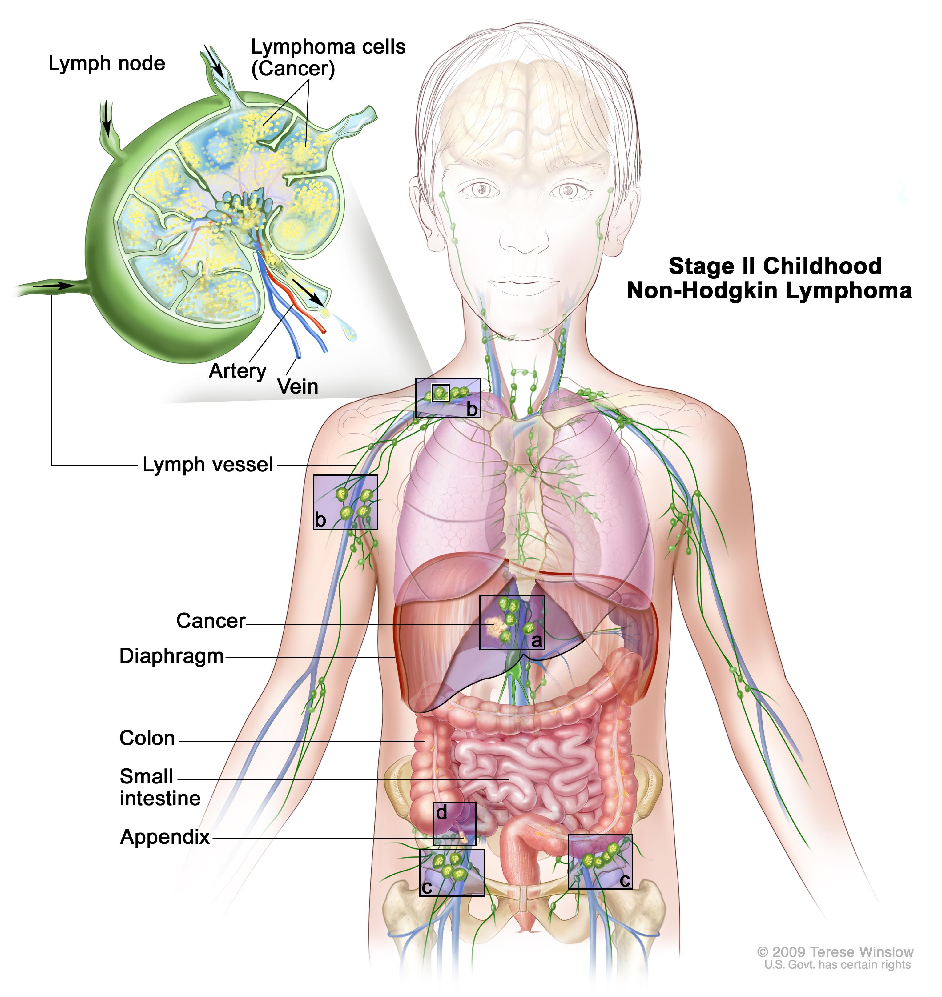 Stage II childhood non-Hodgkin lymphoma; drawing shows cancer in lymph node groups above and below the diaphragm, in the liver, and in the appendix. The colon and small intestine are also shown.  An inset shows a lymph node with a lymph vessel, an artery, and a vein. Lymphoma cells containing cancer are shown in the lymph node.