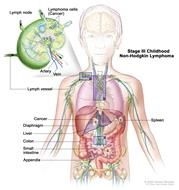 Stage III childhood non-Hodgkin lymphoma; drawing shows cancer in lymph node groups above and below the diaphragm, in the chest, and throughout the abdomen in the liver, spleen, small intestines, and appendix. The colon is also shown. An inset shows a lymph node with a lymph vessel, an artery, and a vein. Lymphoma cells containing cancer are shown in the lymph node.
