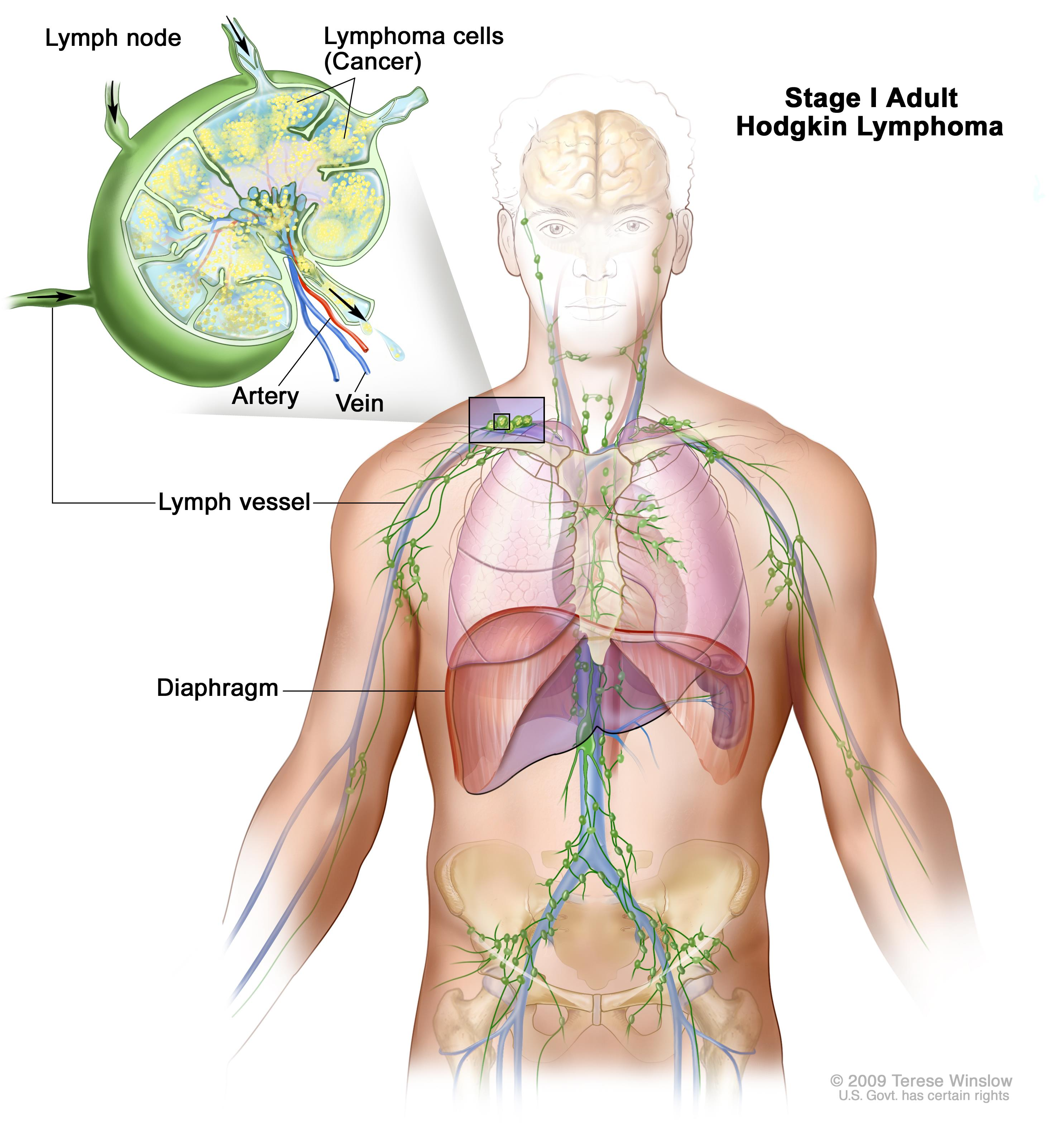 Stage I adult Hodgkin lymphoma; drawing shows cancer in one lymph node group above the diaphragm. An inset shows a lymph node with a lymph vessel, an artery, and a vein. Lymphoma cells containing cancer are shown in the lymph node.
