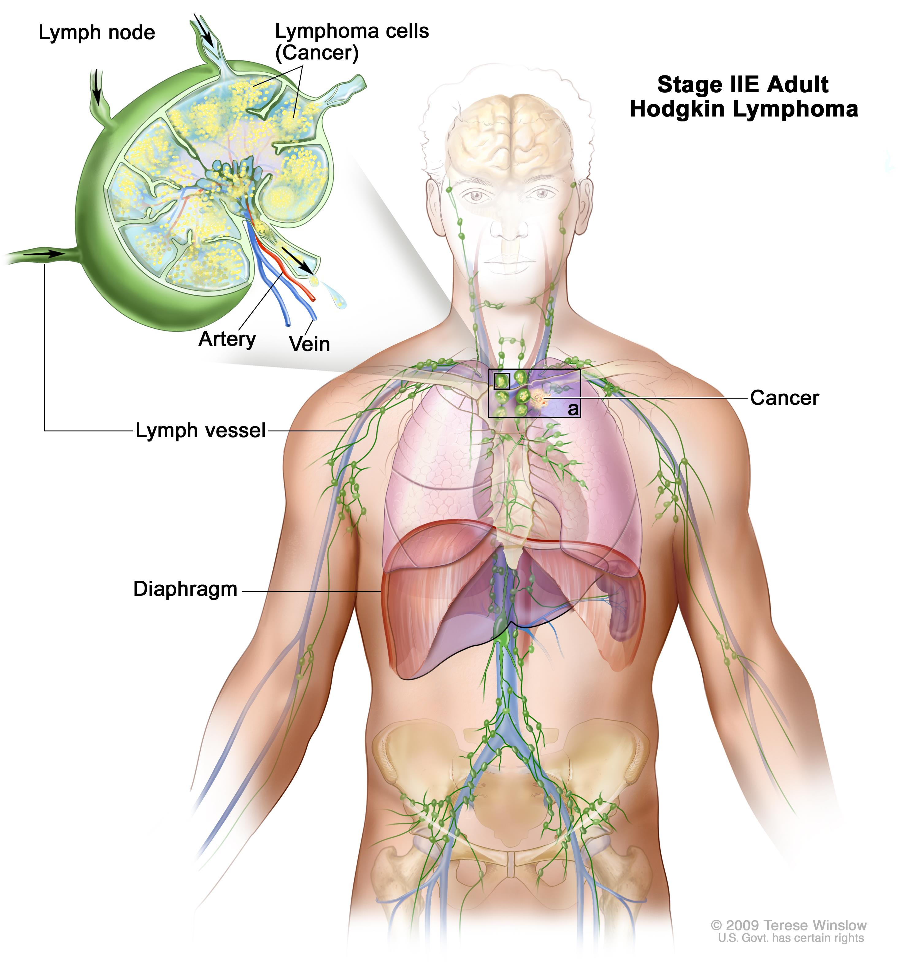 Stage IIE adult Hodgkin lymphoma; drawing shows cancer in one lymph node group above the diaphragm and in the left lung. An inset shows a lymph node with a lymph vessel, an artery, and a vein. Lymphoma cells containing cancer are shown in the lymph node.