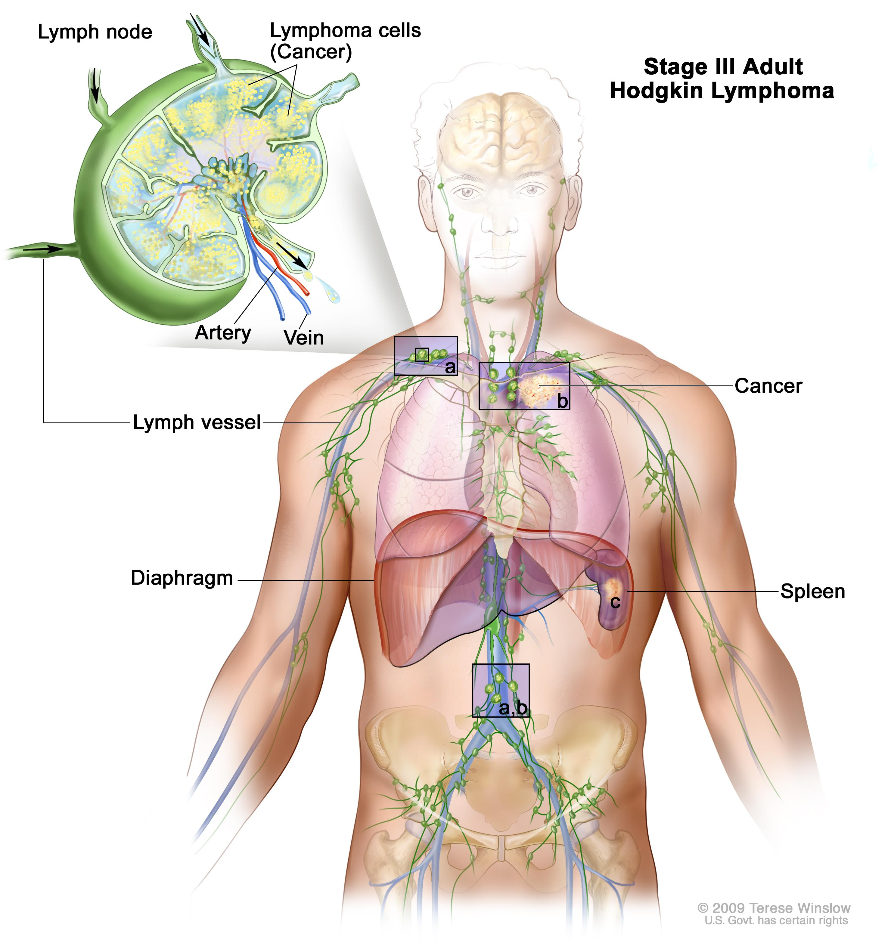 Stage III adult Hodgkin lymphoma; drawing shows cancer in lymph node groups above and below the diaphragm, in the left lung, and in the spleen. An inset shows a lymph node with a lymph vessel, an artery, and a vein. Lymphoma cells containing cancer are shown in the lymph node.