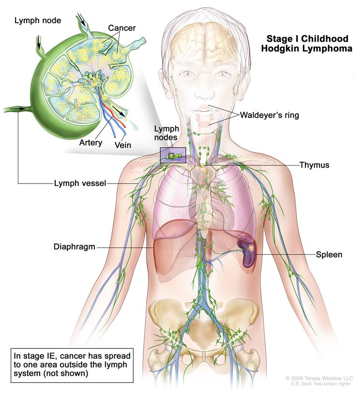 Stage I childhood Hodgkin lymphoma; drawing shows cancer in one lymph node group above the diaphragm. An inset shows a lymph node with a lymph vessel, an artery, and a vein. Lymphoma cells containing cancer are shown in the lymph node.