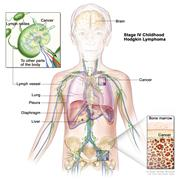 Stage IV childhood Hodgkin lymphoma; drawing shows cancer in the liver, the left lung, and in one lymph node group below the diaphragm. The brain and pleura are also shown. One inset shows cancer spreading through lymph nodes and lymph vessels to other parts of the body. Lymphoma cells containing cancer are shown inside one lymph node. Another inset shows cancer cells in the bone marrow.
