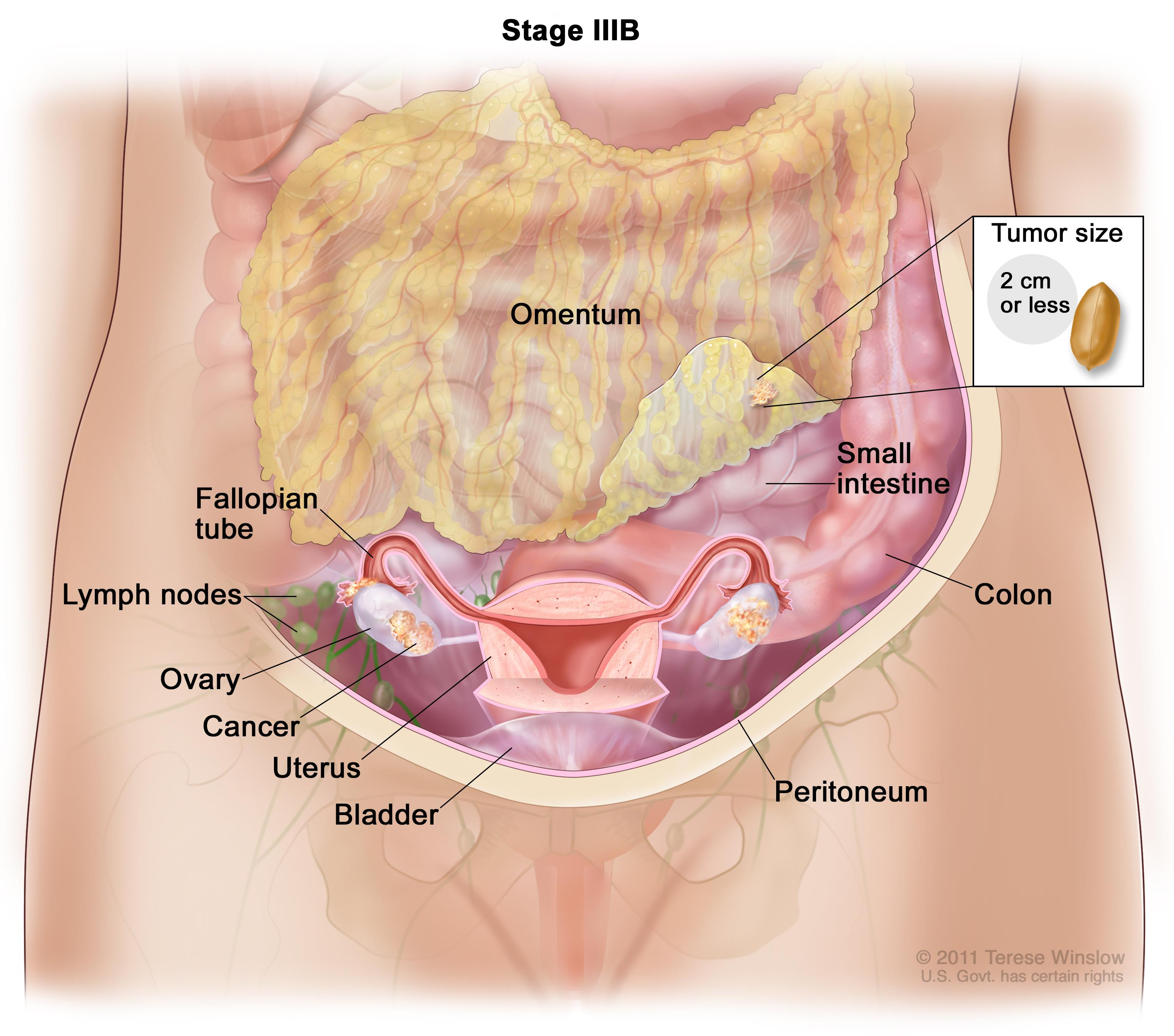 Ovarian Epithelial Fallopian Tube And Primary Peritoneal Cancer Vanderbilt Ingram Cancer Center