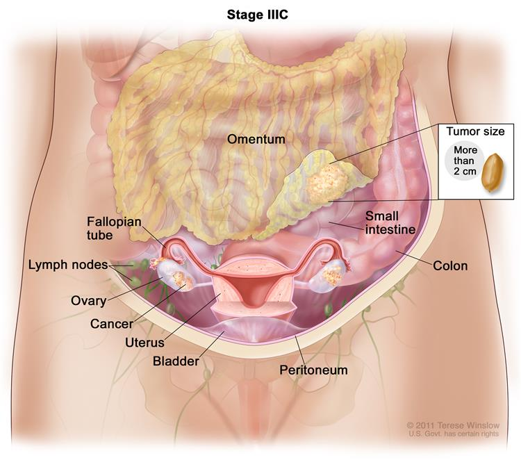 Stage IIIC ovarian cancer; drawing shows tumors inside both ovaries that have spread to the uterus, colon, small intestine, lymph nodes in the abdomen, and the surface of the peritoneum, where they are larger than 2 centimeters in diameter. An inset shows 2 centimeters is about the size of a peanut. Also shown are the fallopian tubes and bladder.
