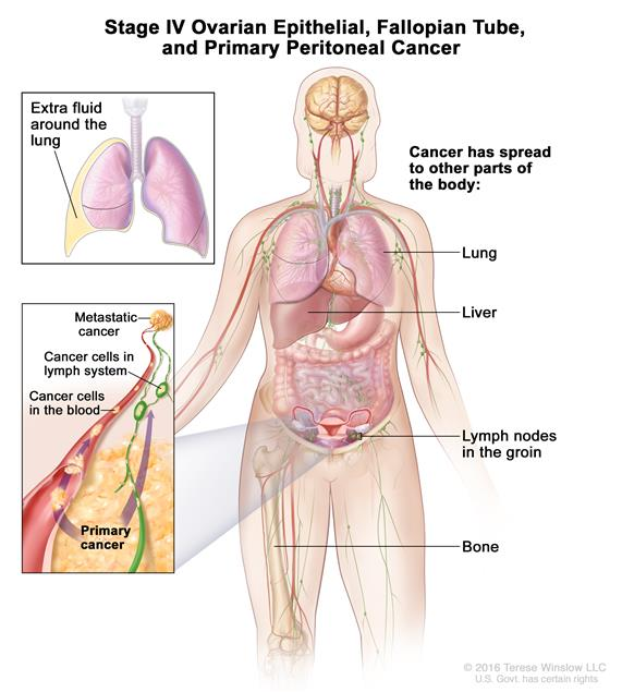 Stage IV ovarian cancer; drawing shows parts of the body where ovarian cancer may spread, including the liver, lung, lymph nodes, and bone. An inset shows a close-up of cancer spreading through the blood and lymph to other parts of the body.