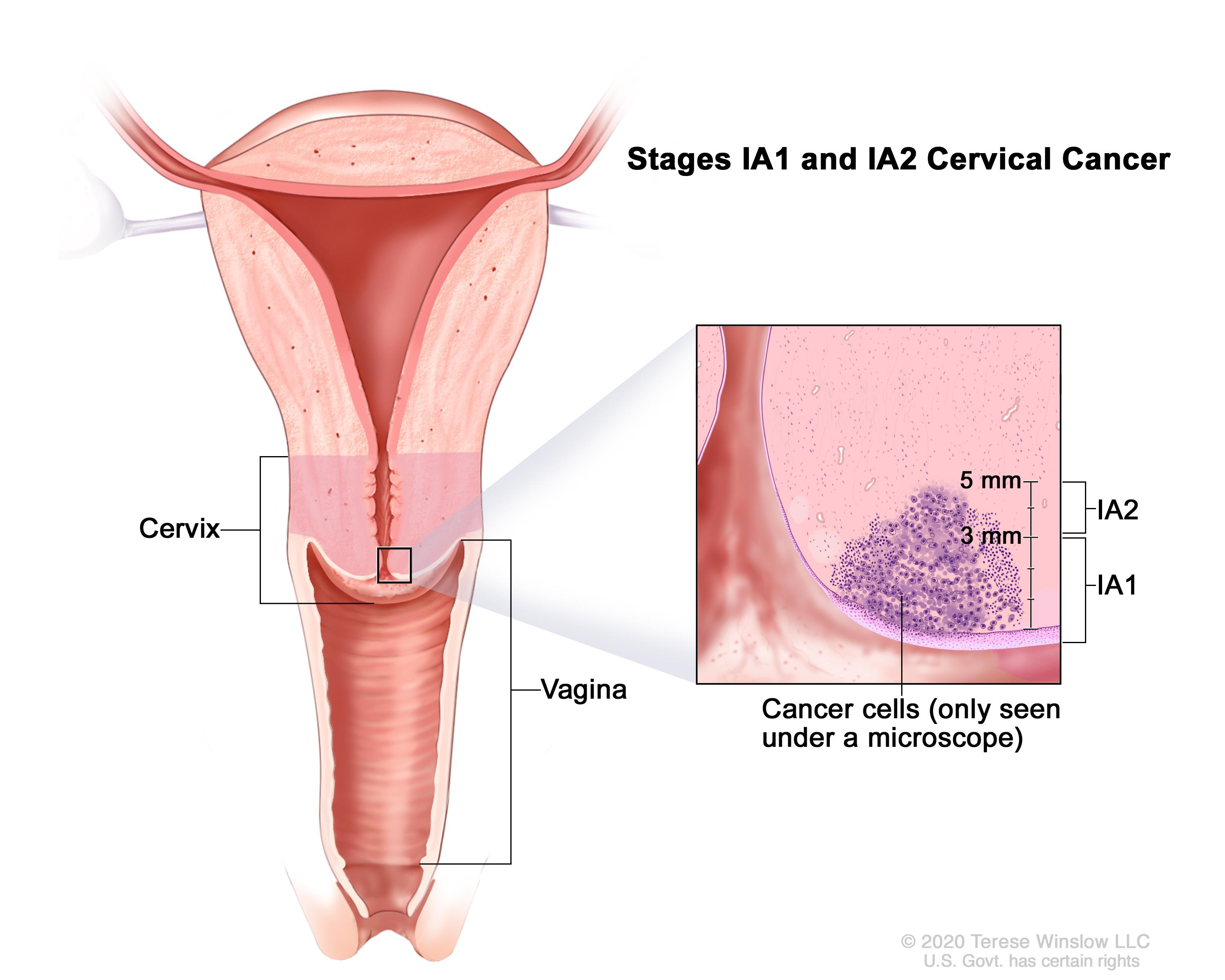 Cervical Cancer Treatment Pdqpatient Version National Cancer