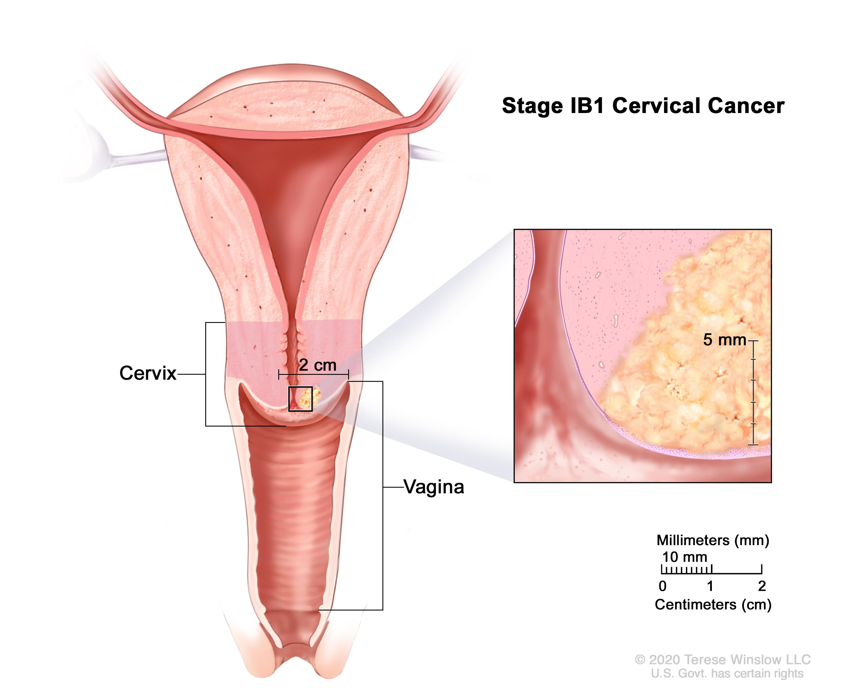 Stage IB1 and IB2 cervical cancer shown in three cross-section drawings of the cervix and vagina. An inset on the left shows stage IB1 cancer that is 7 mm wide and more than 5 mm deep. Drawing in the middle shows stage IB1 cancer that is smaller than 4 cm. Drawing on the right shows stage IB2 cancer that is larger than 4 cm.
