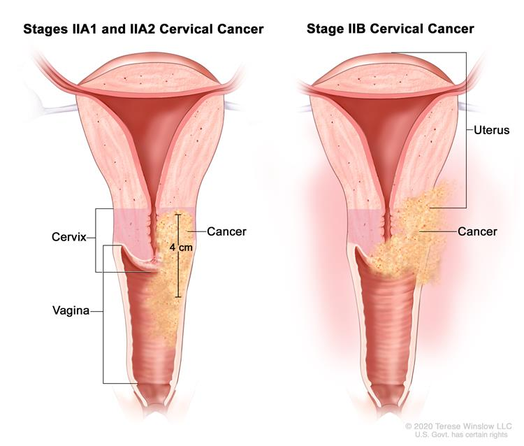 Cervical And Uterine