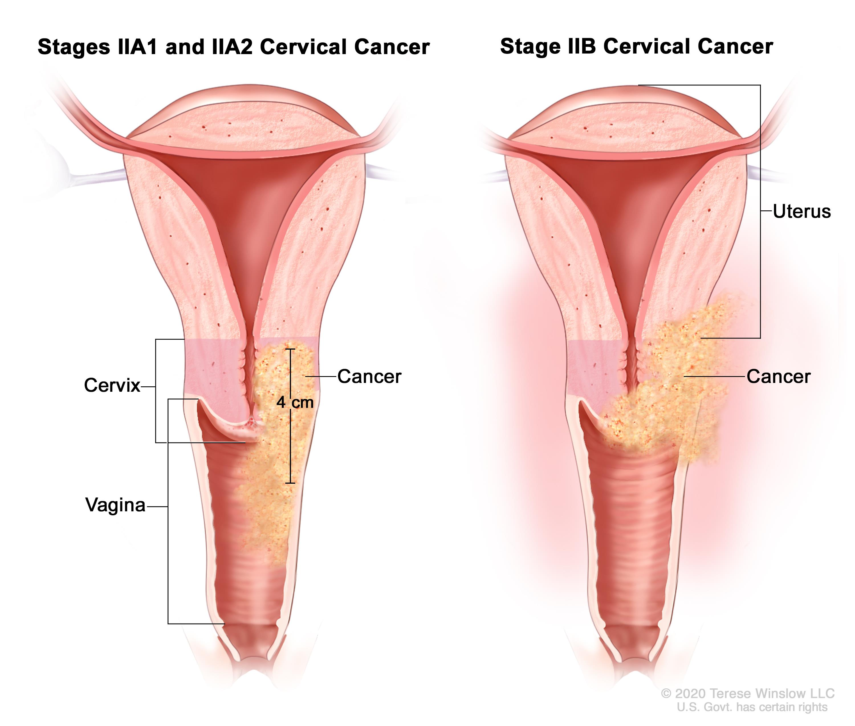 Enlarge Stage II cervical cancer ...
