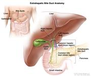 Anatomy of the extrahepatic bile duct; drawing shows the liver, right and left hepatic ducts, gallbladder, cystic duct, common hepatic duct (perihilar), common bile duct (distal), extrahepatic bile duct, small intestine, and pancreas. The inset shows the liver, bile ducts, gallbladder, pancreas, and small intestine.